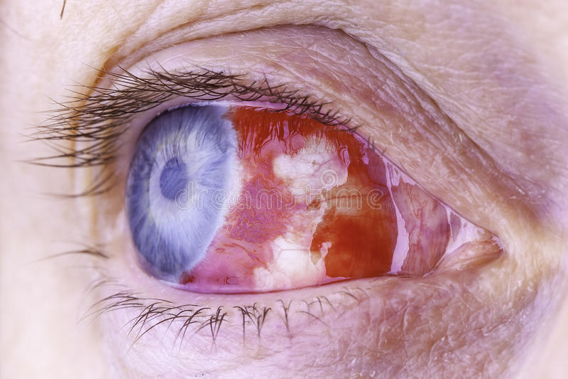 Macro image of a red bloodshot eye royalty free stock photos