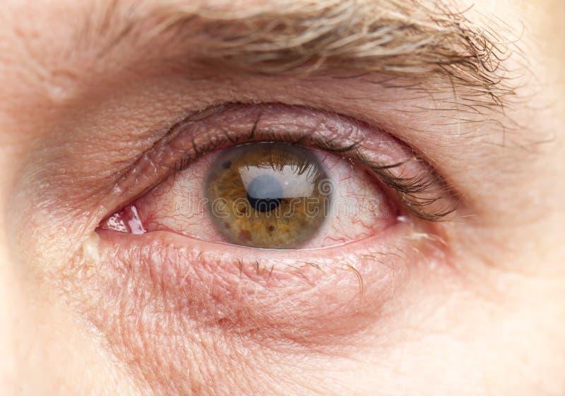 Macro ontsproten menselijk oog royalty-vrije stock afbeelding