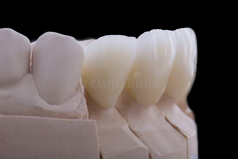 Zirconium crowns. Macro photo of zirconium crowns on a black background royalty free stock photography