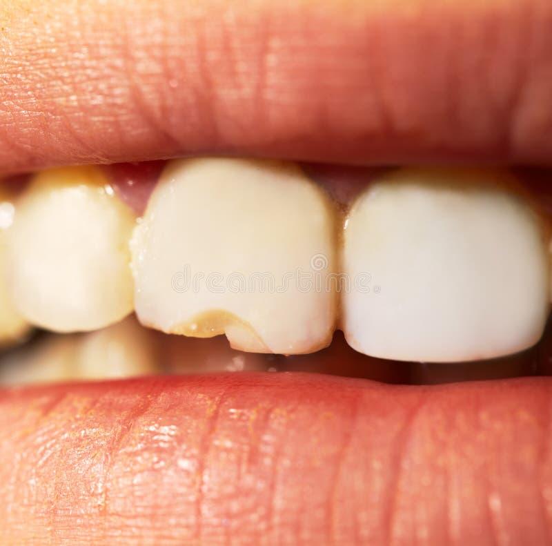 Macro schot van de gebroken tand. stock afbeelding