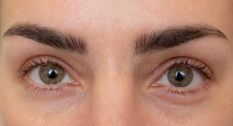 Eyes before and after beauty treatment with and without wrinkles stock images
