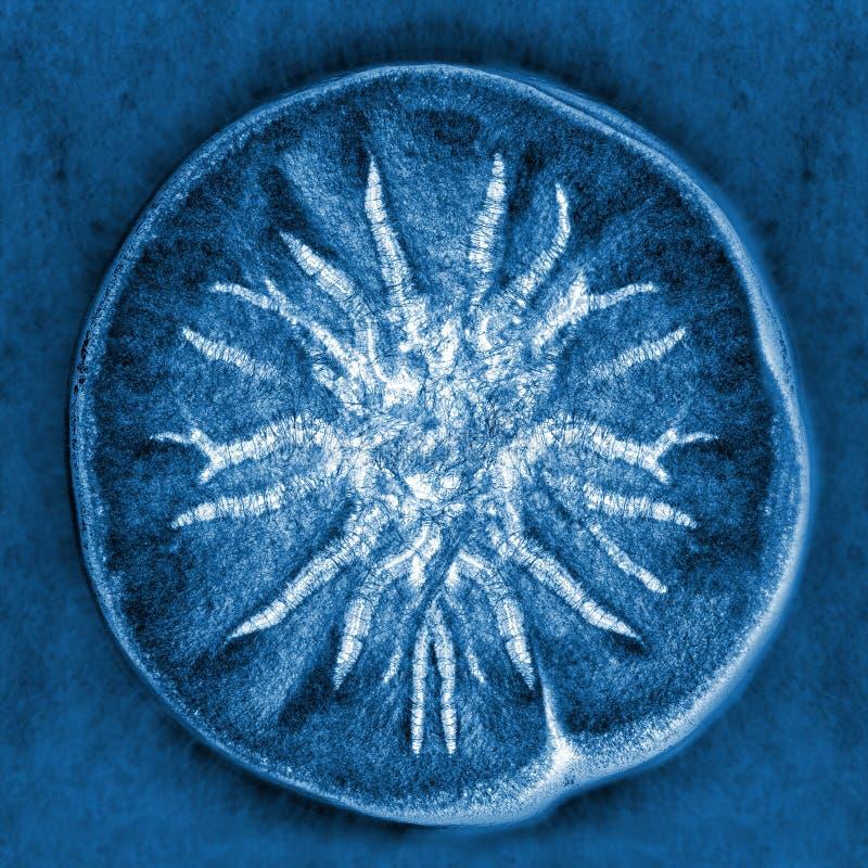 Free Macro X-ray Shot Of Fuzzy Mold Royalty Free Stock Image - 34490516