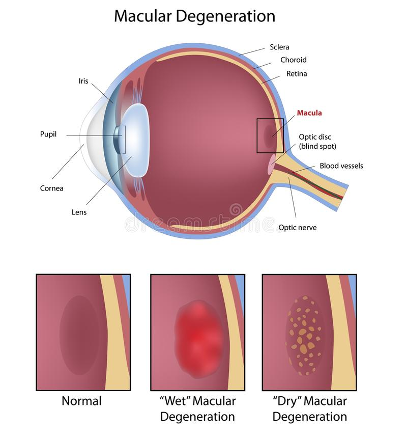 Macular degeneration. 2 types of macular degeneration - a common eye condition, eps8 royalty free illustration