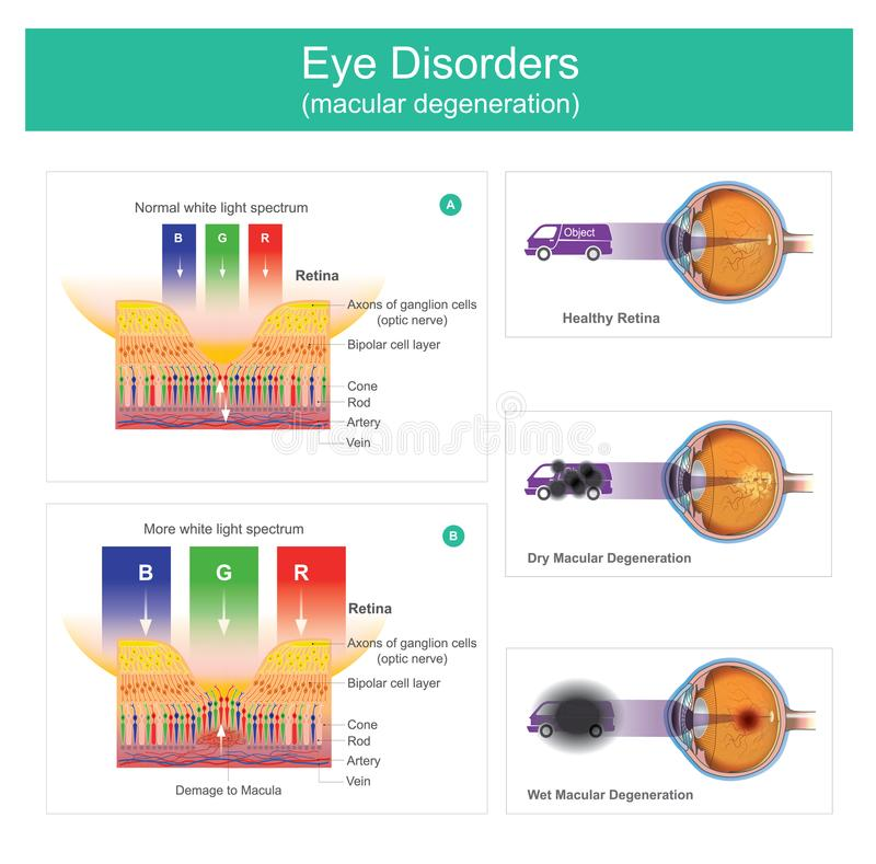 Macular degeneration is a medical condition which may result in. Blurred or no vision, Early on there are often no symptoms. Over time, however, some people royalty free illustration