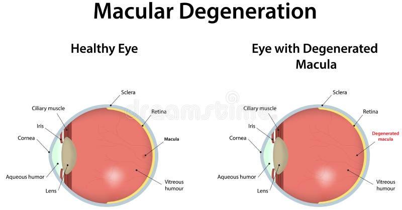 Macular försämring vektor illustrationer