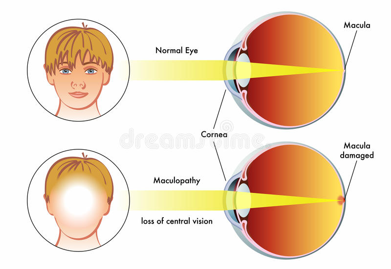 Maculopathy. Medical illustration of the symptoms of maculopathy stock illustration