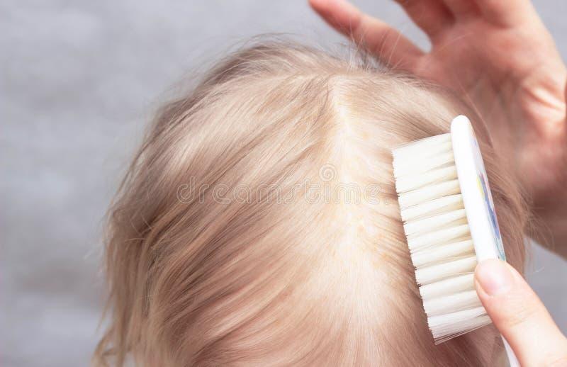 Madre que peina la corteza seborreica en la cabeza del bebé s, primer, dermatitis de Seborrhoeic, inflamatorio fotografía de archivo