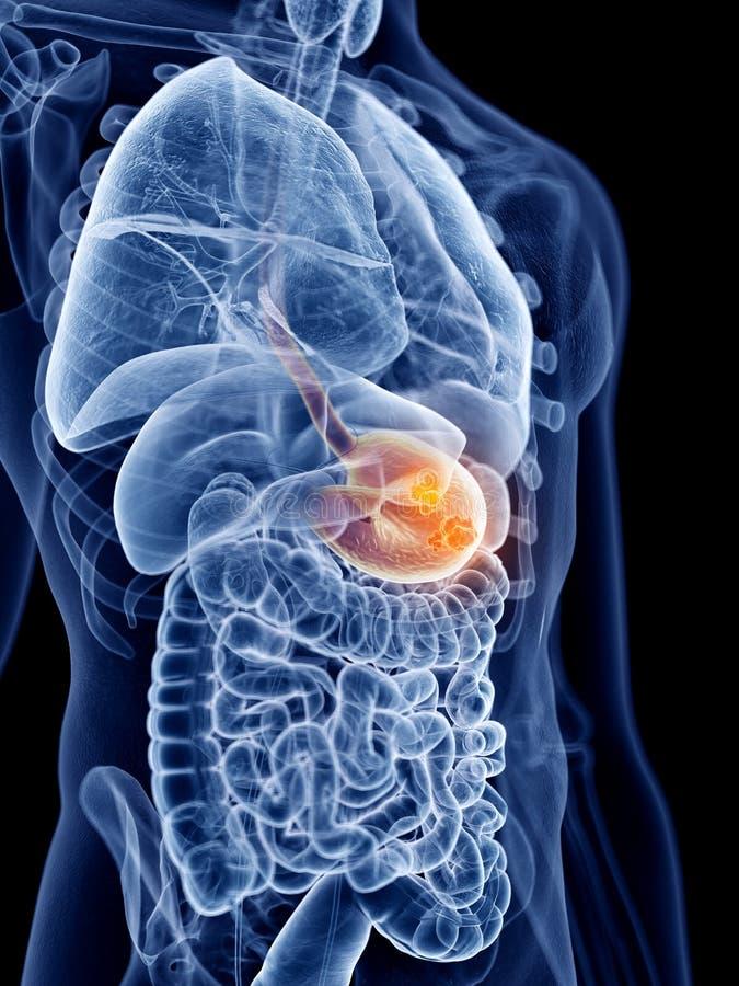 Magen-Krebs lizenzfreie abbildung