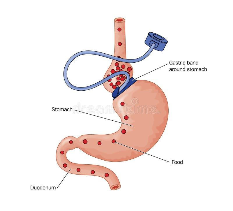 Magenbandoperation lizenzfreie abbildung