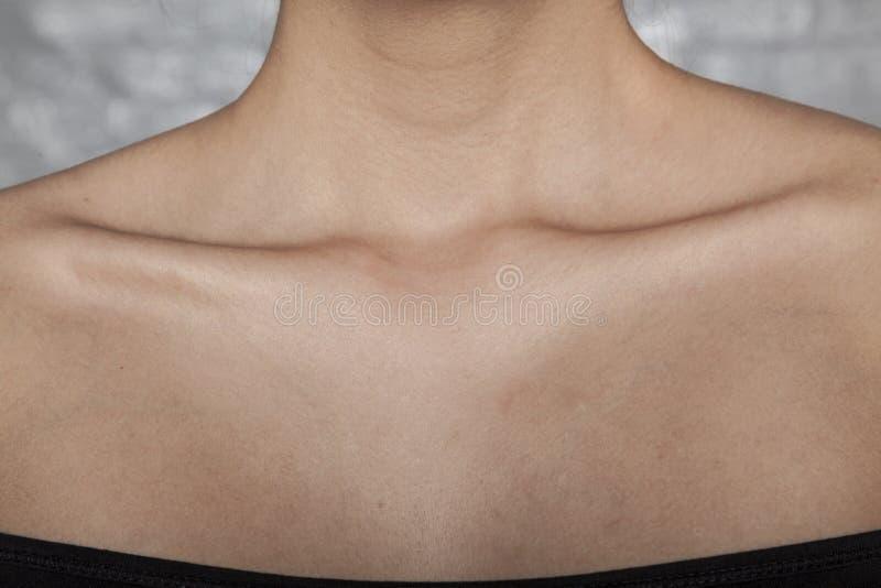 Magere beenderen in een vrouw, een slechte dieet of een ziekte royalty-vrije stock foto