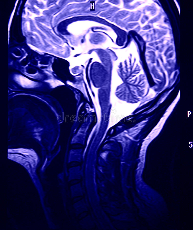 Magnetic Resonance of Brain, blue MR. Magnetic Resonance of Brain, blue, MRI sagittal view stock photos