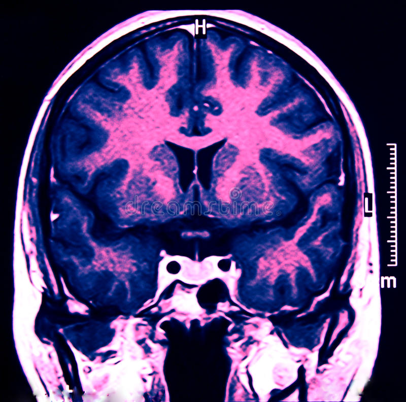 Magnetic Resonance of Brain, blue MR. Magnetic Resonance of Brain, blue, MRI coronal view royalty free stock photography