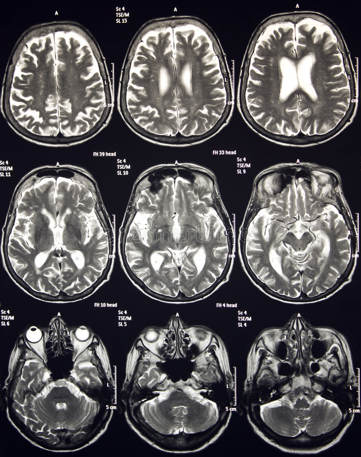 Magnetic Resonance Of Brain, MR. Magnetic Resonance of Brain, axial MRI without contrast stock image