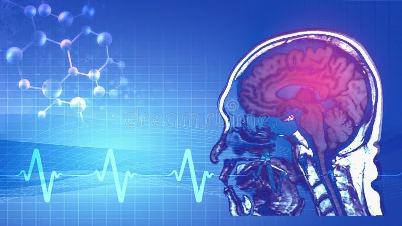 Magnetic resonance image MRI of brain royalty free illustration