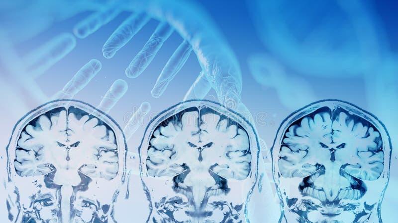Magnetic resonance image MRI of the brain stock illustration