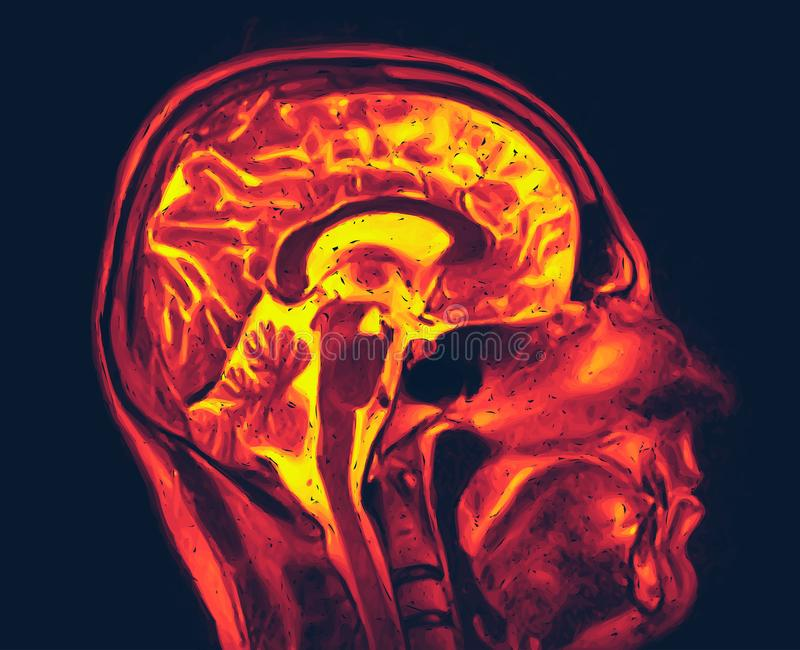 Magnetic resonance imaging of the brain. MRI scan vector vector illustration