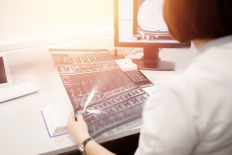 Magnetic resonance imaging De arts analyseert resultaten van diagnosekanker en tumorpatiënt stock afbeelding