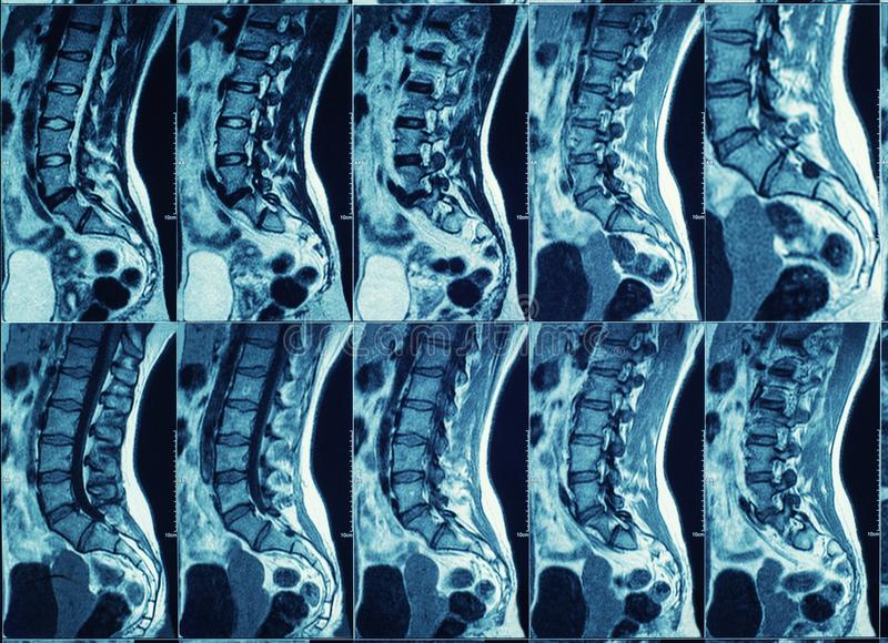 Magnetic resonance imaging of human spine stock images