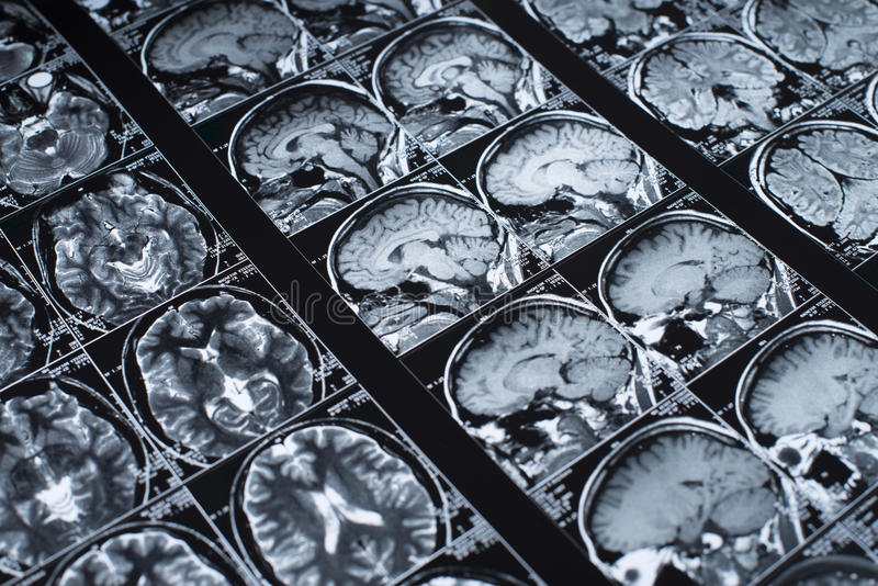 Magnetic resonance stock images