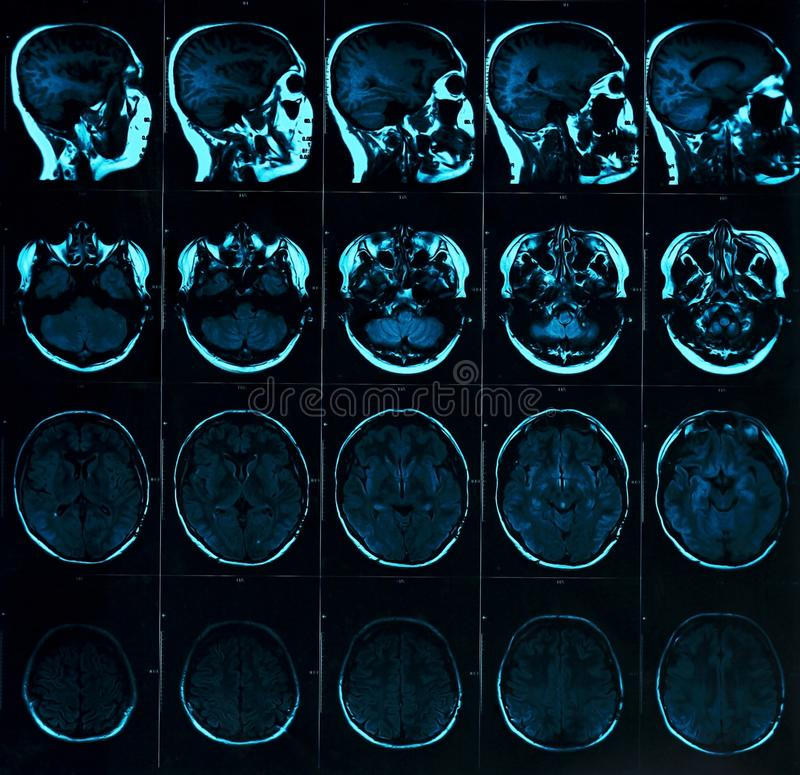 Magnetic resonance scan of the brain with skull. MRI head scan on dark background blue color royalty free stock images