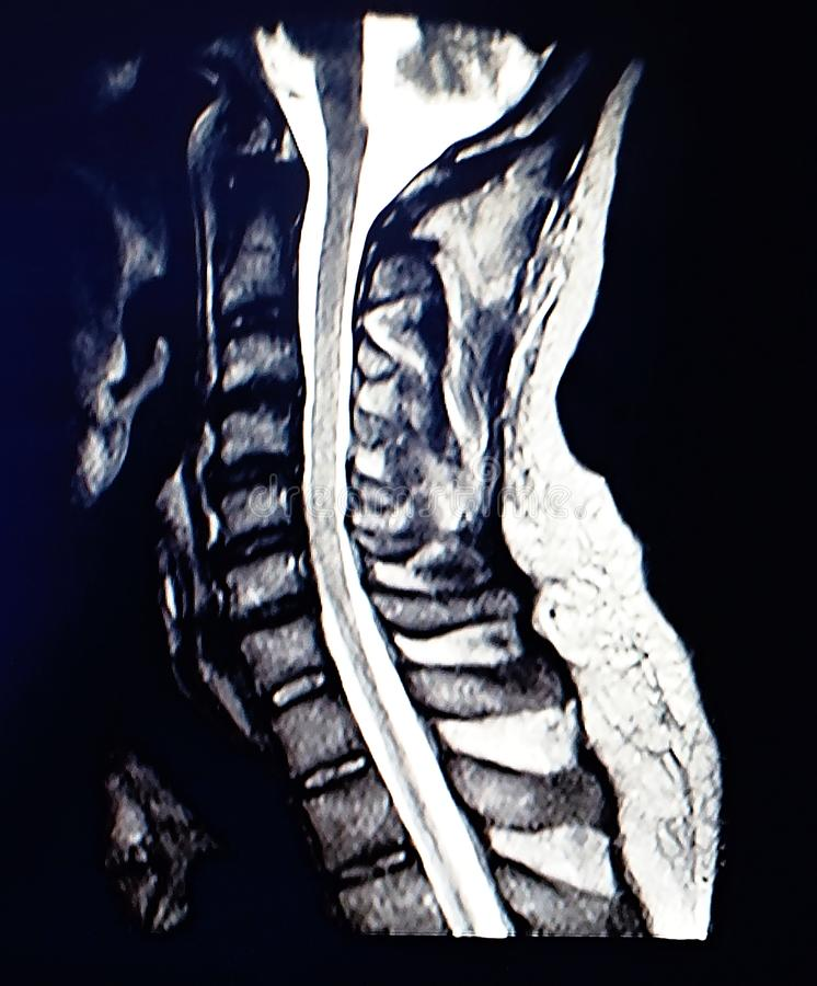 Magnetic resonance scan of the cervical spine. The display method for objectively determining the correct diagnosis and treatment stock image
