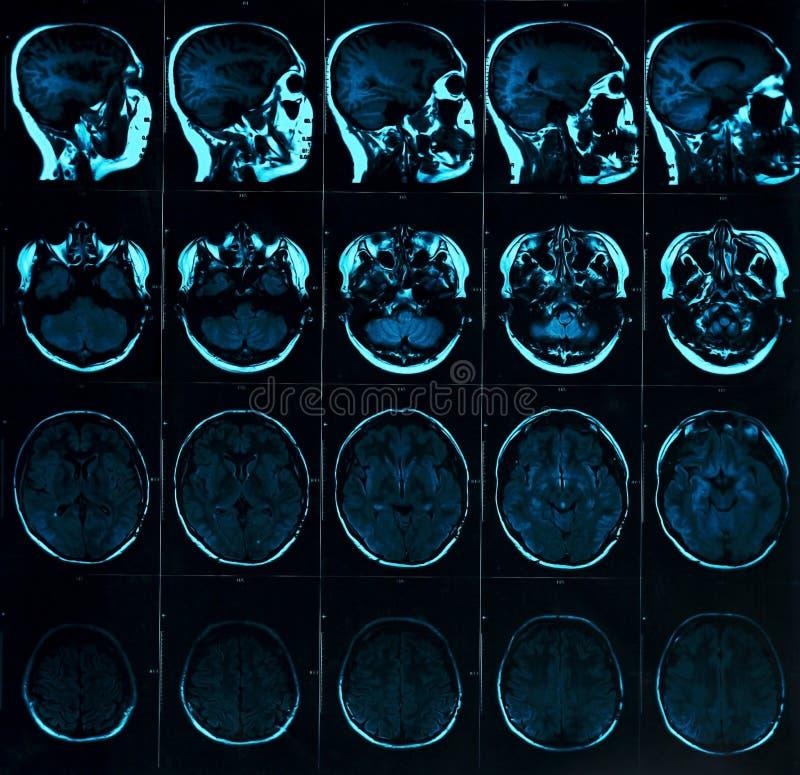Magnetische resonantieaftasten van de hersenen met schedel Het hoofdaftasten van MRI op donkere blauwe kleur als achtergrond royalty-vrije stock afbeeldingen