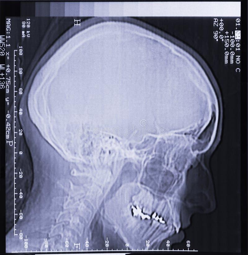 Magnetische resonantieaftasten van menselijk hoofd royalty-vrije stock afbeeldingen