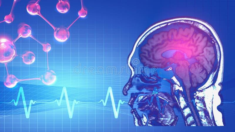 Magnetische resonantiebeeld MRI van hersenen stock illustratie