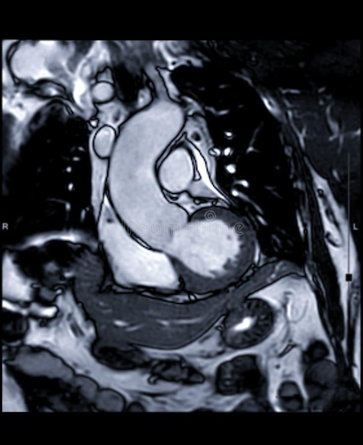 Magnetresonanztomographie des Herzens oder der Herzspintomographie stockfoto