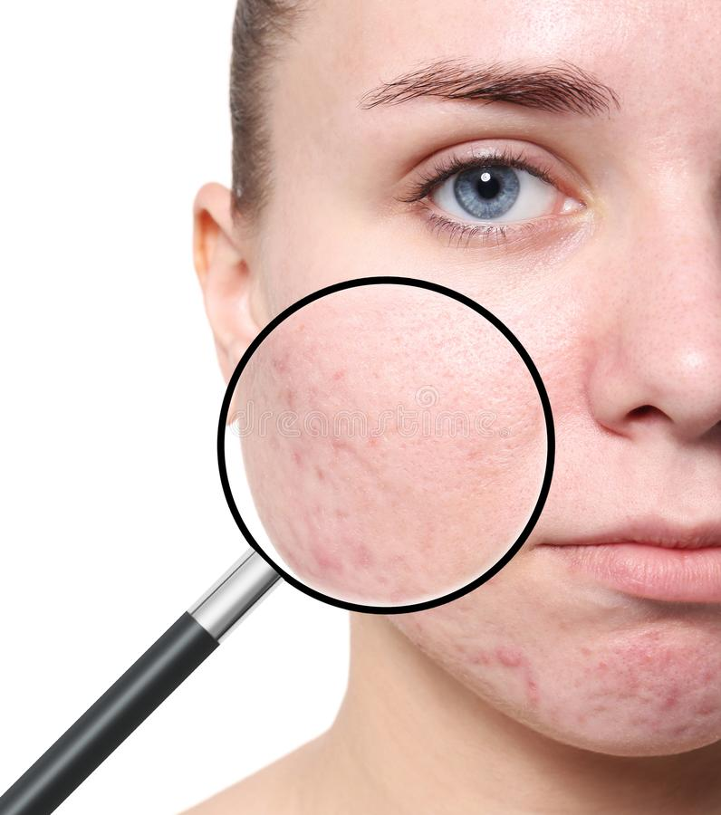 Magnifying young woman`s skin with acne problem. On white background stock photo