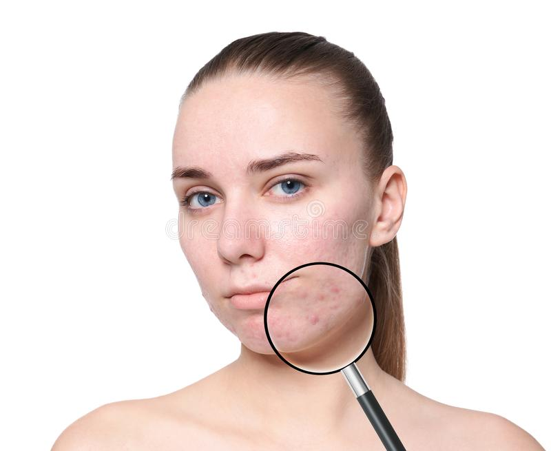 Magnifying young woman`s skin with acne problem stock photography