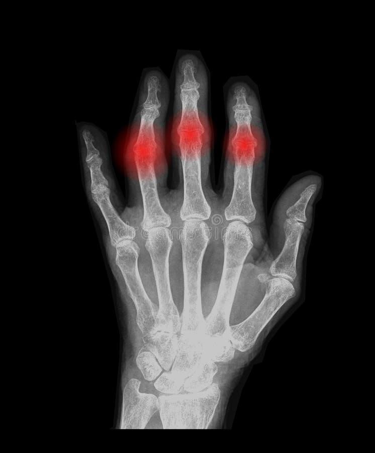 Main avec l'arthrose illustration de vecteur