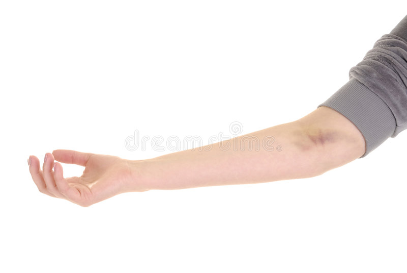 Main avec la contusion photos libres de droits