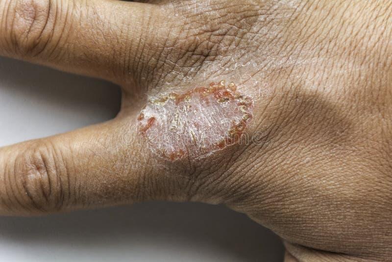 Main avec le psoriasis d'Eczema de dermatite atopique vulgaris images stock