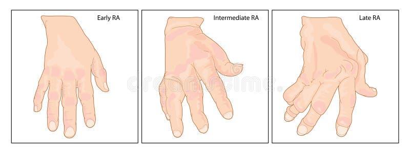Main avec le rhumatisme articulaire illustration stock