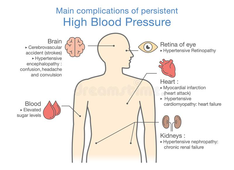 Main complications of persistent High Blood Pressure. vector illustration