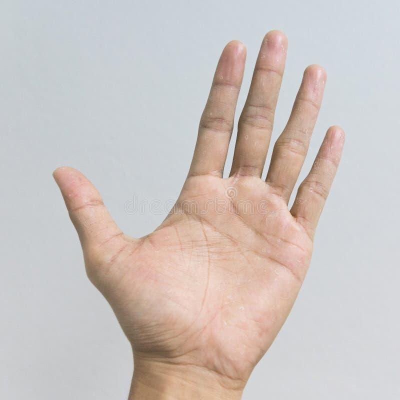 Main de peau sèche et épluchage avec la dermatite d'Eczema images stock