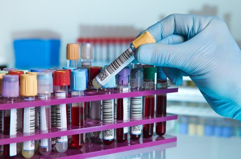 Main de technicien de laboratoire tenant un tube de sang pour l'analyse image libre de droits