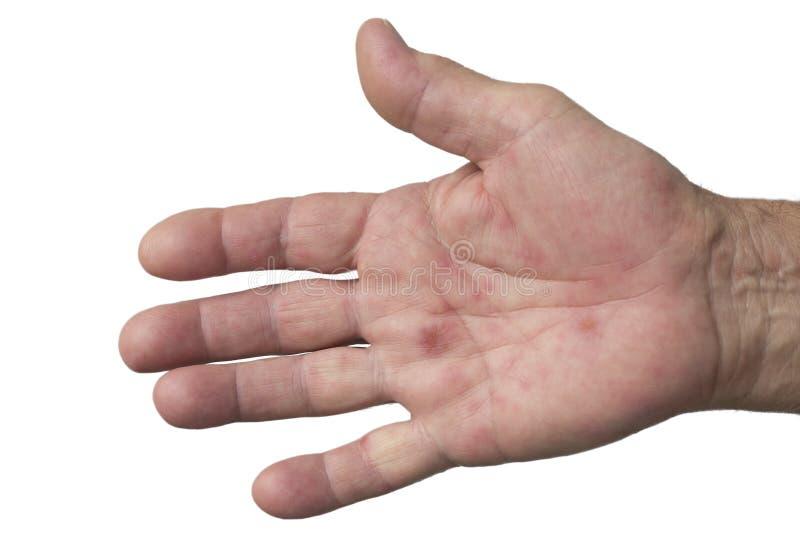 Main, fièvre aphteuse image stock