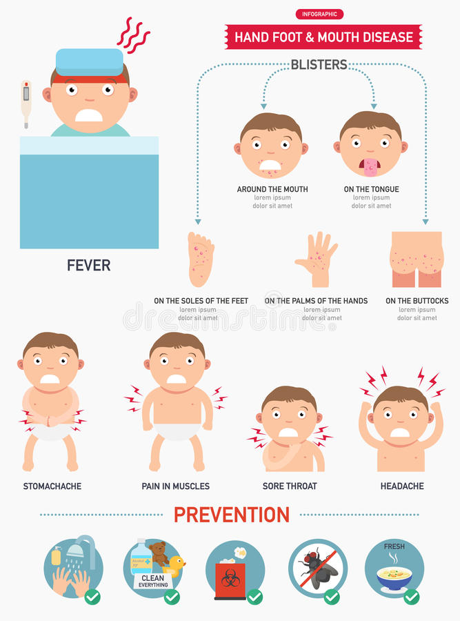 Main, fièvre aphteuse infographic illustration stock