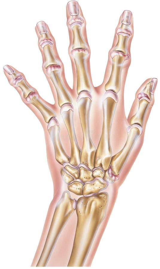 Main - rhumatisme articulaire des joints illustration stock