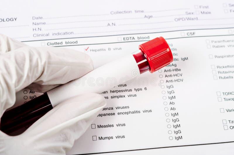 Main tenant le tube de sang pour l'essai d'hépatite photographie stock
