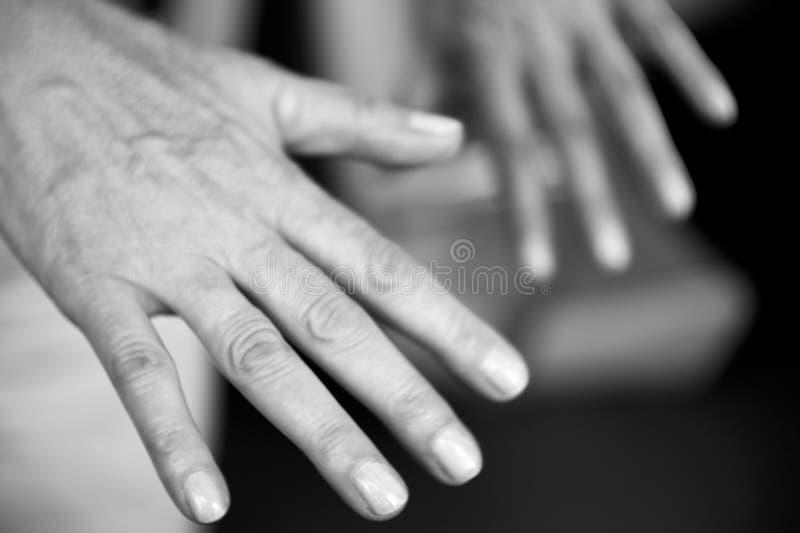 Mains de femme avec des défauts d'arthrite et de peau de rhumatisme images libres de droits