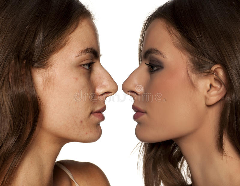 Before and after make up. Comparative profile views of the same woman, with and without makeup royalty free stock photos