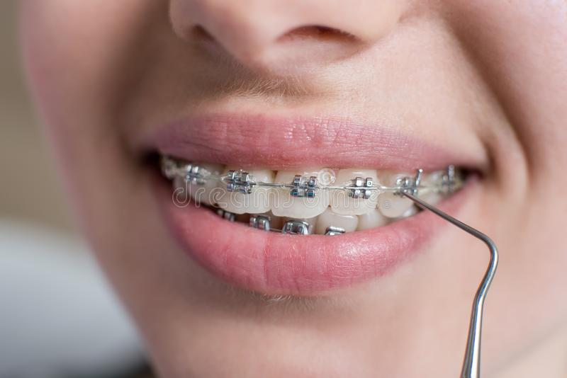 Makro som skjutas av tänder med hänglsen Kvinnlig patient med metallkonsoler på det tand- kontoret orthodontic behandling arkivfoton