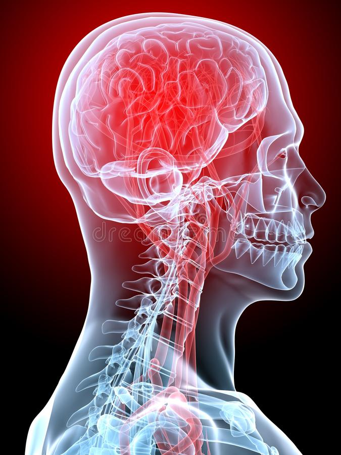 Mal de tête/migraine illustration stock