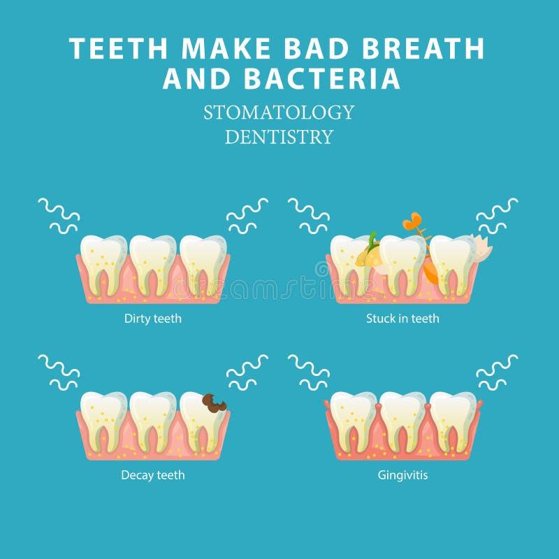 Mala respiración y bacterias Concepto del vector de la odontología de la estomatología ilustración del vector
