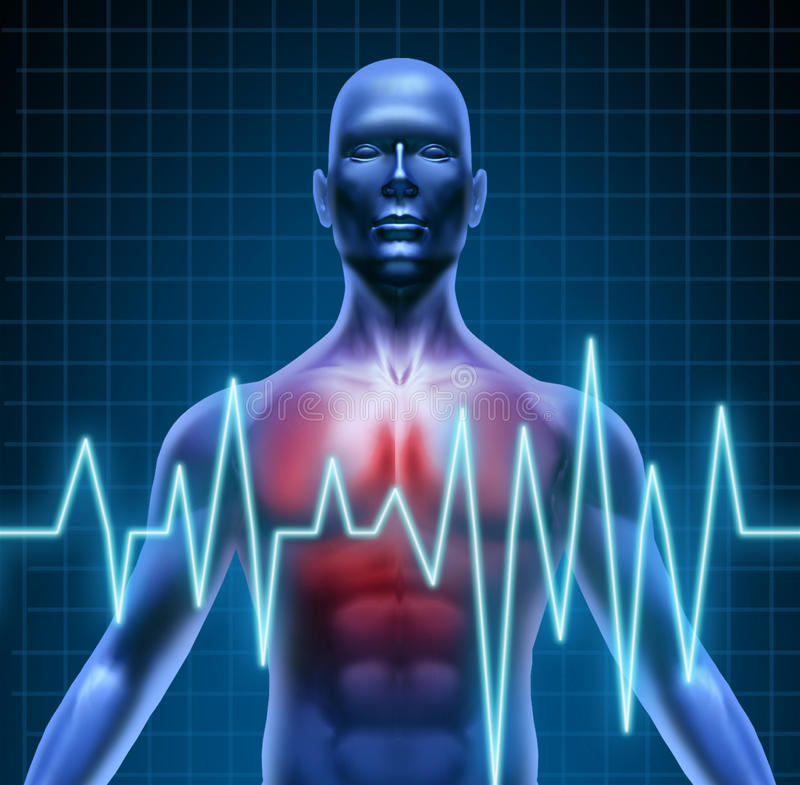 Maladie cardiaque illustration libre de droits