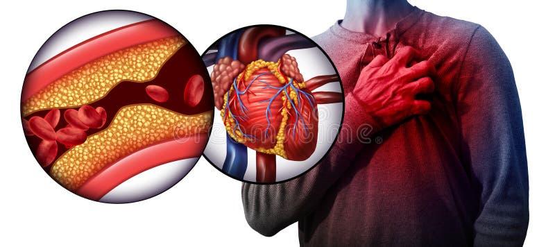 Maladie cardiaque humaine d'infarctus du myocarde illustration libre de droits