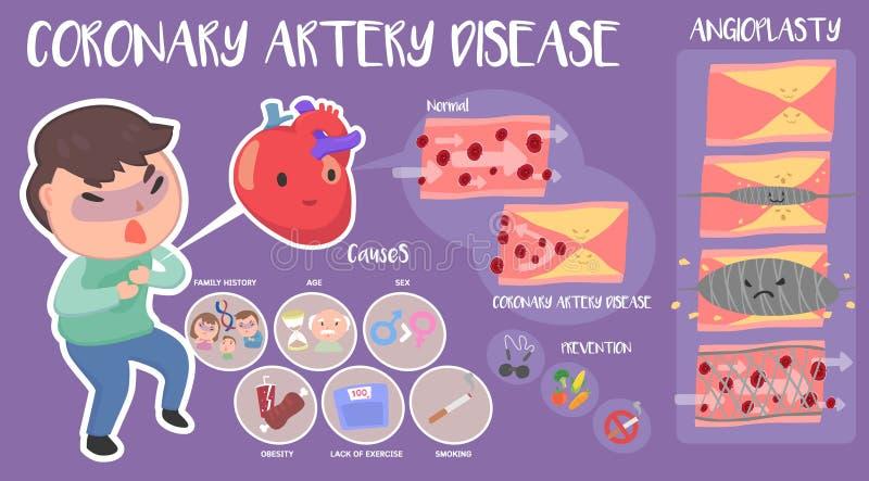 Maladie de l'artère coronaire infographic illustration libre de droits